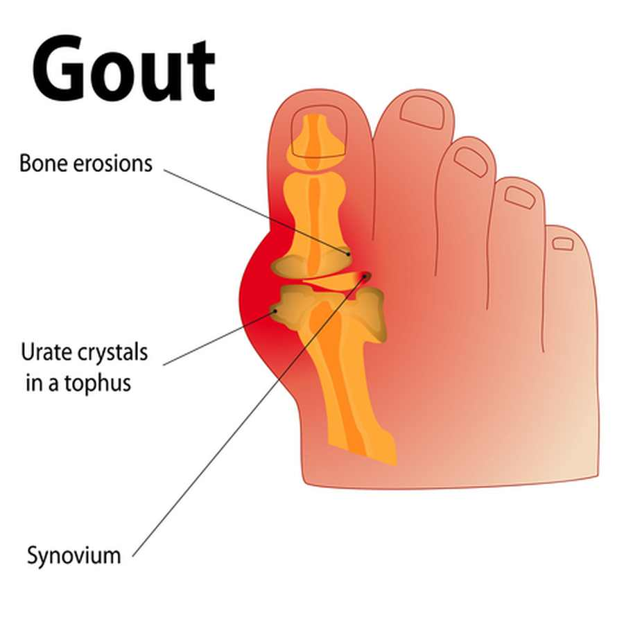 Keto Diet And Gout (Facts You Must Know)
